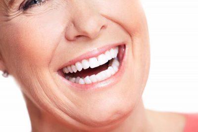 Dentaduras completas sobre implantes sonrisa