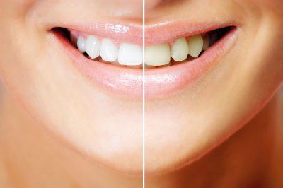 Endodoncia Avanzada Blanqueamiento Dental