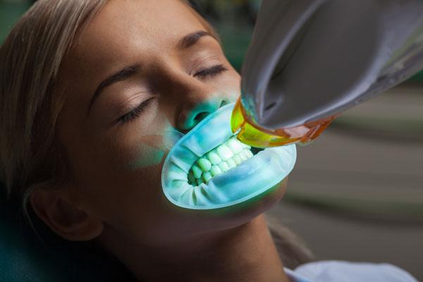 Endodoncia Avanzada Blanqueamiento Dental led