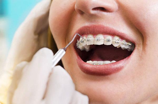 Endodoncia Avanzada Datos de Ortodoncia con brackets