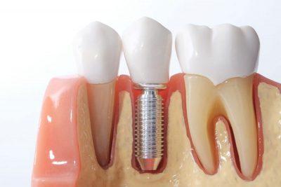 Implantes Dentales EndoAvanzada