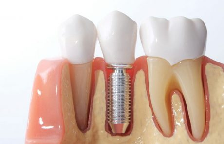 Implantes Dentales EndoAvanzada