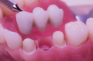 Implantes Dentales Endodoncia Avanzada