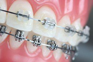 Implantes Ortodónticos Endo Avanzada