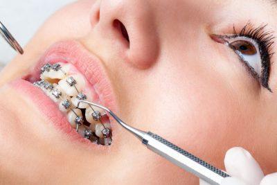 Implantes Ortodónticos Endodoncia Avanzada