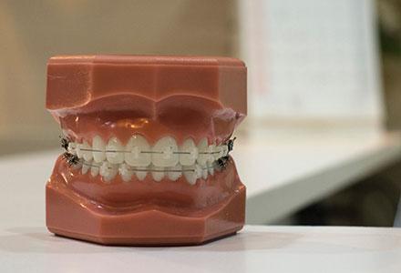 Ortodoncia Funcional Estética EndoAvanzada