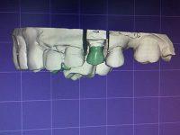 Rehabilitación Dental Diseño protesis 3 EndoAvanzada