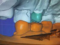 Rehabilitación Dental Diseño protesis 4 EndoAvanzada