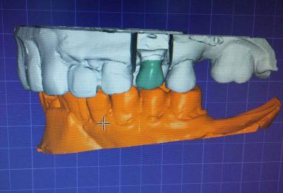Rehabilitación Dental EndoAvanzada
