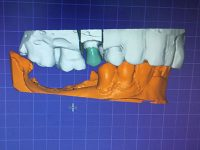 Rehabilitación Dental Escaneo EndoAvanzada