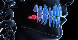 cuándo extraer la muelas del juicio endodoncia avanzada