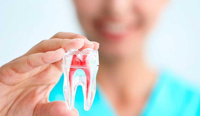 ¿Por qué es recomendable la endodoncia?