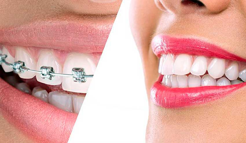 Cuando se Recomienda la Ortodoncia